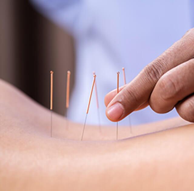 Ab sofort Akupunktur in unserer Ordination